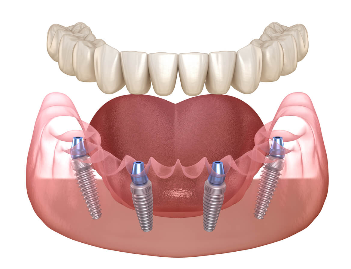 Model Of All-on-4 Dental Implants