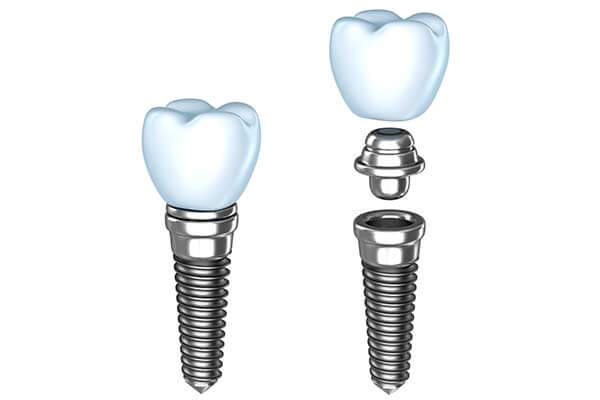 Single Dental Implants in Manhattan