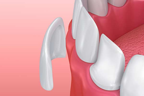 Porcelain Veneers in Manhattan