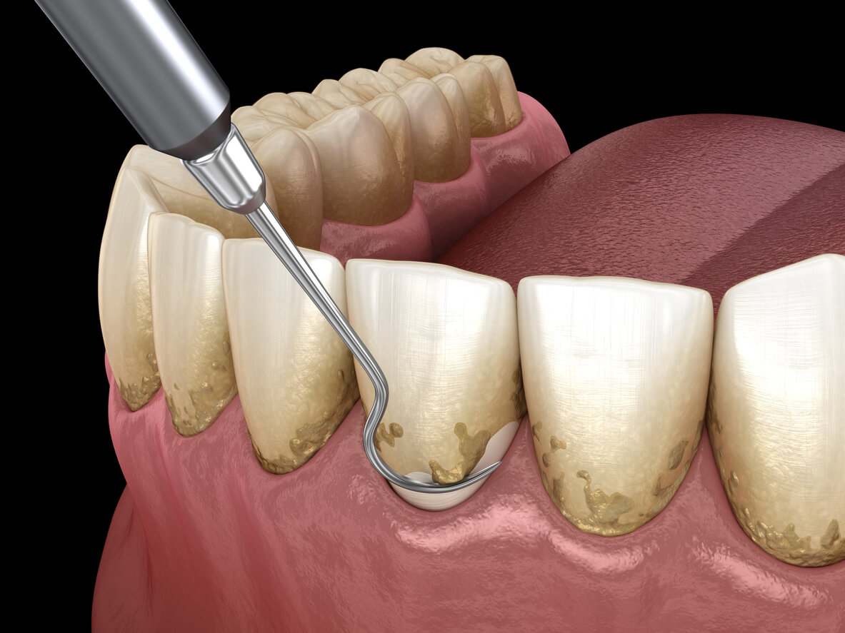 Treating Gum Disease With Scaling & Root Planning