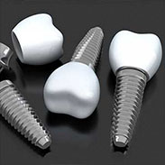 Dental Implants in Manhattan