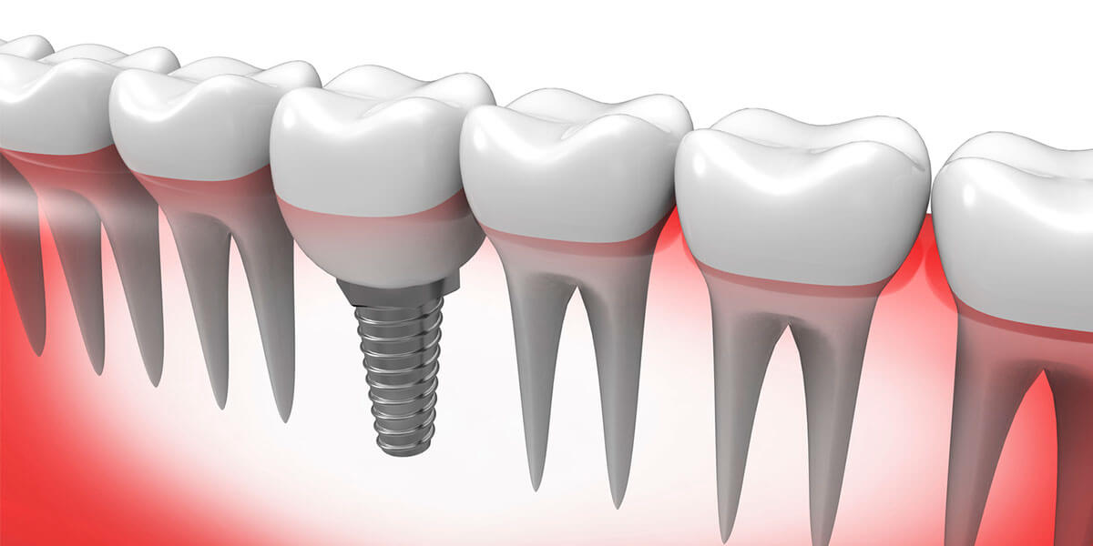 Single Dental Implants in Lower Manhattan