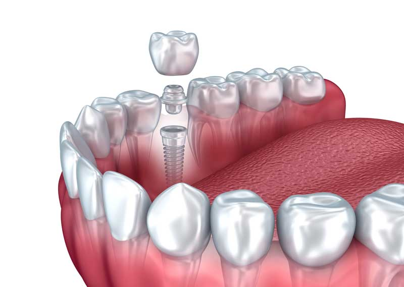 Dental Implants in Lower Manhattan