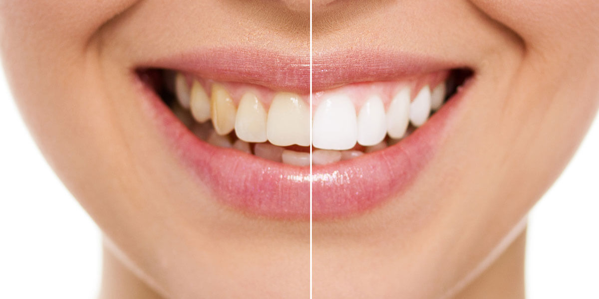 Teeth Whitening in Manhattan, NY